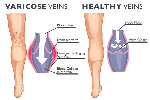 Varicoses veins and healthy veins